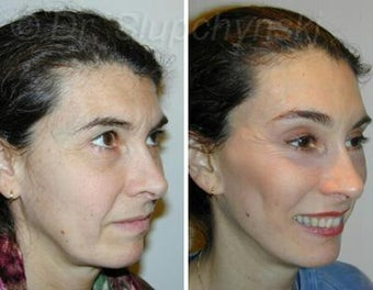 Browlift, Midfacelift, Lower Face and Necklift, Upper Eyelid Lift