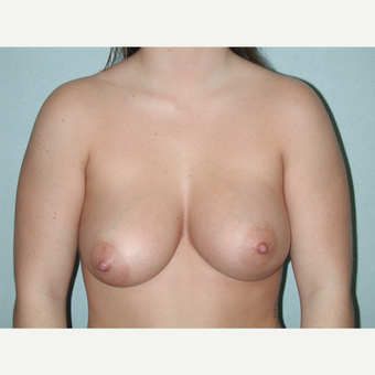 35-44 year old woman treated with Breast Implant Revision after 3851112