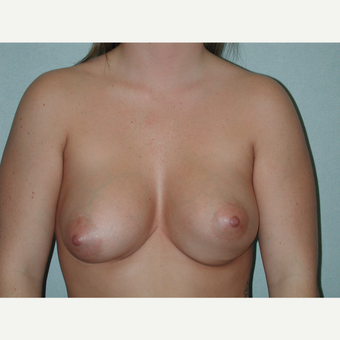 35-44 year old woman treated with Breast Implant Revision before 3851112