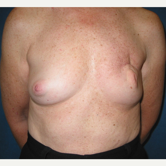 35-44 year old woman treated with Breast Reconstruction before 3434911