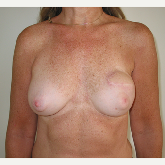 35-44 year old woman treated with Breast Reconstruction after 3434911