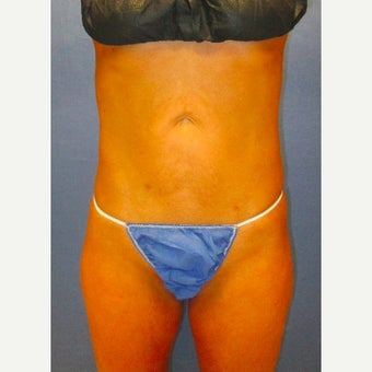 29 Year Old Woman Treated With Laser Liposuction Photo