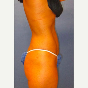 29 year old woman treated with Laser Liposuction