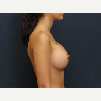 25-34 year old woman treated with Breast Augmentation after 3344100