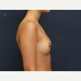 25-34 year old woman treated with Breast Augmentation before 3344100