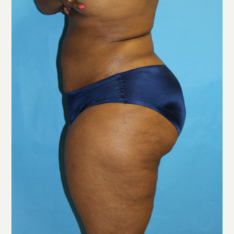 35-44 year old woman treated with Smart Lipo after 3437517