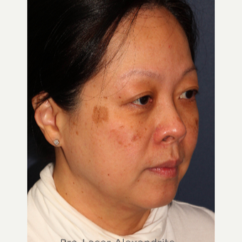 35-44 year old woman treated with Laser Treatment before 3623949