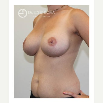 25-34 year old woman treated with Breast Lift with Implants 1617021