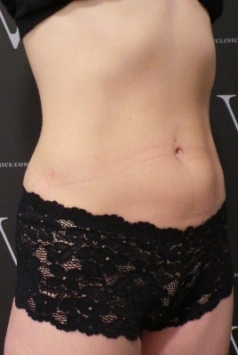 Getting rid off mummy tummy with CoolSculpting after 3298001