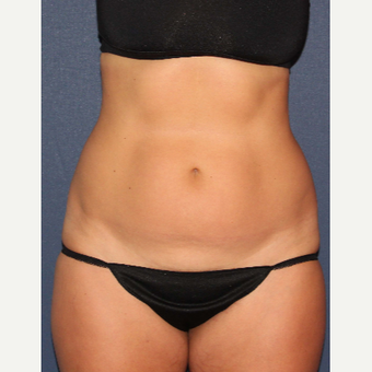 25-34 year old woman treated with Liposculpture before 3137069