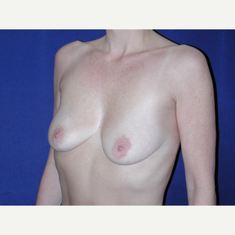 35-44 year old woman treated with Breast Implants before 3765530