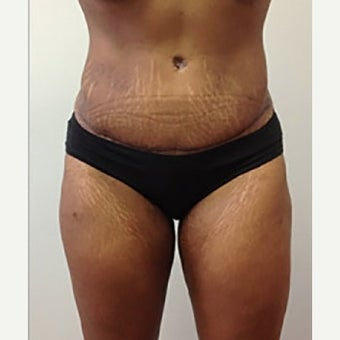 35-44 year old woman treated with Tummy Tuck after 2327503