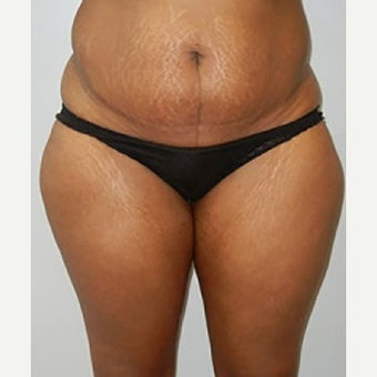 35-44 year old woman treated with Tummy Tuck before 2327503