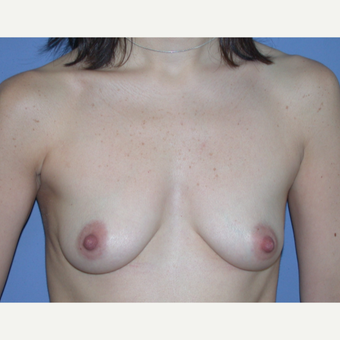 25-34 year old woman treated with Breast Augmentation before 3219580