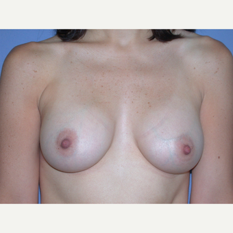 25-34 year old woman treated with Breast Augmentation after 3219580