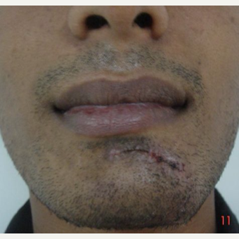 25-34 year old man treated with Mole Removal