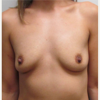 Breast Implants for this 31 Year Old Hispanic Woman before 3006163