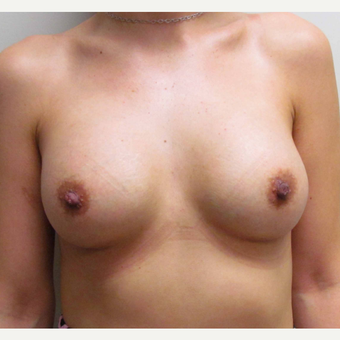 Breast Implants for this 31 Year Old Hispanic Woman after 3006163