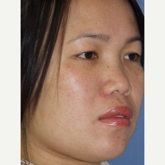 18-24 year old woman treated with all natural augmentation Rhinoplasty with autologous rib grafts before 3236784