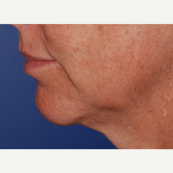 45-54 year old woman treated with Neck Lift before 3625241