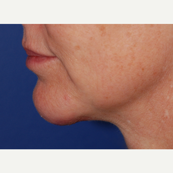 45-54 year old woman treated with Neck Lift after 3625241