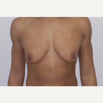 35-44 year old woman treated with Breast Augmentation before 3377600