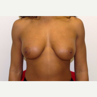 35-44 year old woman treated with Breast Augmentation after 3377600