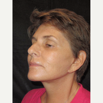 55-64 year old woman treated with Facelift after 3320725
