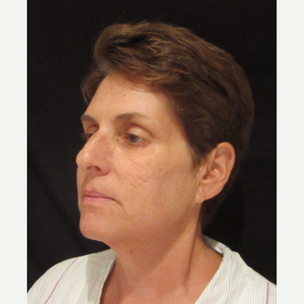 55-64 year old woman treated with Facelift before 3320725