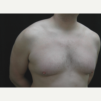 35-44 year old man treated with Male Breast Reduction before 3181914