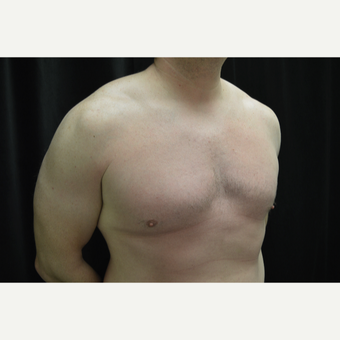 35-44 year old man treated with Male Breast Reduction after 3181914