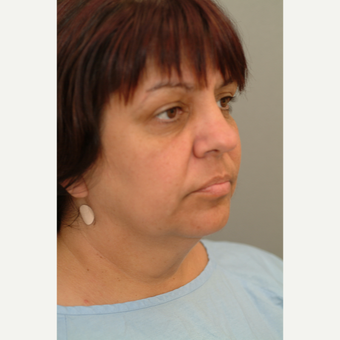 45-54 year old woman treated with Facelift before 3214153