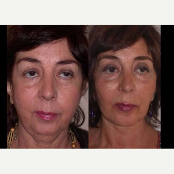 55-64 year old woman treated with Facelift before 3602544