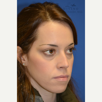 25-34 year old woman treated with Cheek Augmentation before 3421916