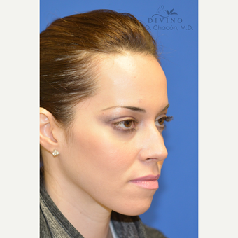 25-34 year old woman treated with Cheek Augmentation after 3421916