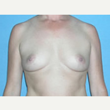 35-44 year old woman treated with Breast Augmentation before 3781216