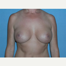 35-44 year old woman treated with Breast Augmentation after 3781216