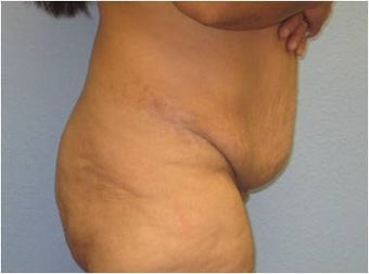 45-54 year old woman treated with Lower Body Lift 3737292