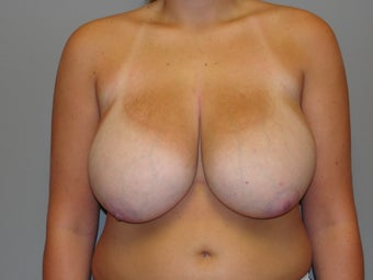 19 year old breast reduction