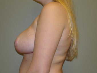 19 year old breast reduction 1066879