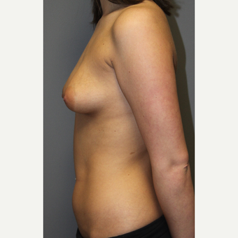 18-24 year old woman treated with Breast Implants before 3129146