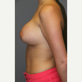 18-24 year old woman treated with Breast Implants after 3129146