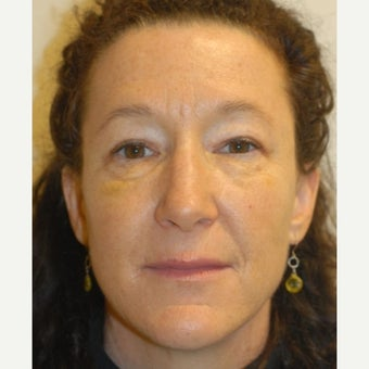 45-54 year old woman treated with Liquid Facelift after 2413224