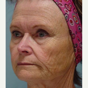 65-74 year old woman treated with Mini Lift