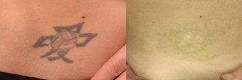 Tattoo Removal using PicoSure before 1248288