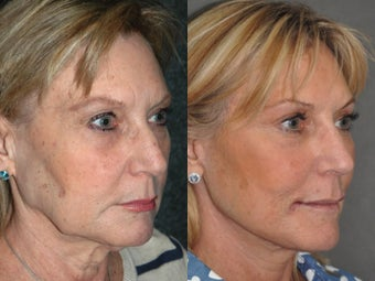 Liquid Non Surgical Rhinoplasty Nosejob with Perlane Filler