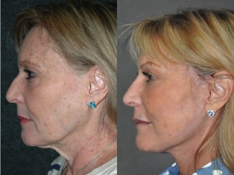 Liquid Non Surgical Rhinoplasty Nosejob with Perlane Filler 1521372