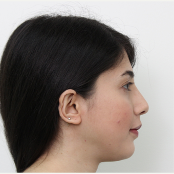 25-34 year old woman treated with Rhinoplasty after 3405673