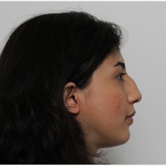 25-34 year old woman treated with Rhinoplasty before 3405673