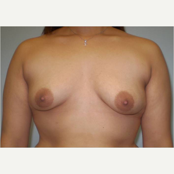 21 year old woman treated with Breast Augmentation before 3725995